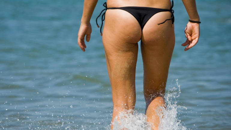 About Cellulite and Its Causes